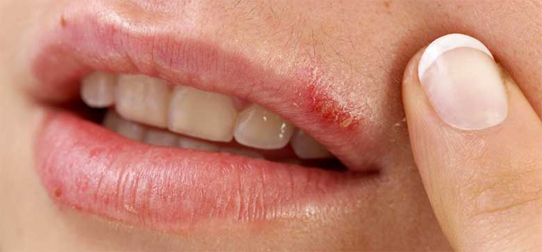 Герпес на губе лечить домашних условиях