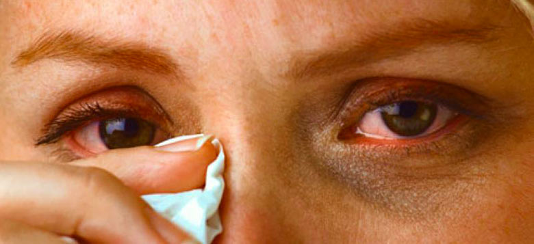 Герпес на коже глаз