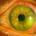 Глаз пораженный герпесом