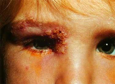 Опоясывающий герпес на глазу у ребенка