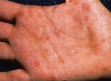 Проявления герпесвируса на ладонях