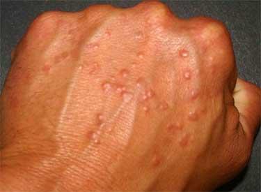 Герпетическая сыпь на тыльной стороне руки