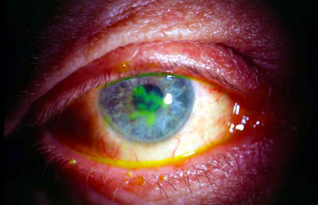 Герпес на глазу (офтальмогерпес) - симптомы, лечение, фото