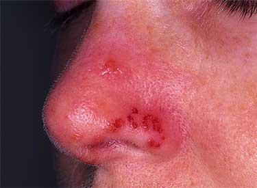 Герпетическое поражение поверхности носа