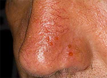 Герпес на коже носа в стадии лечения