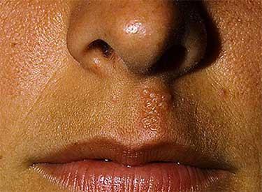 Герпес над губой возле носа