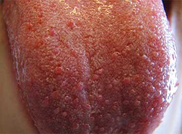 Герпетическая сыпь на языке