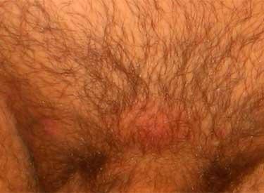 Герпетическая сыпь в паховой области у мужчин