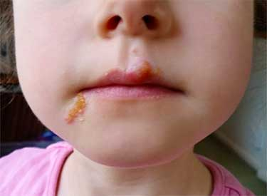 Герпетическая сыпь на губе у девочки