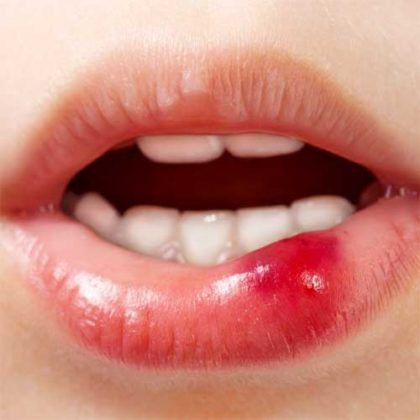 Простуда на губе