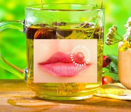 Народная медицина при лечении герпеса на губах