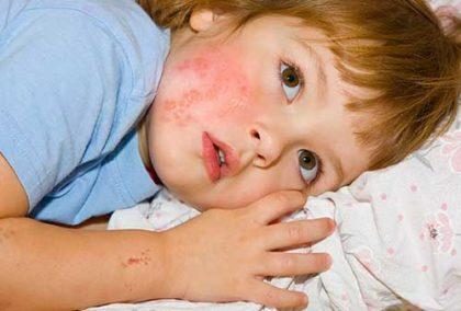 Опоясывающий герпес на лице у ребёнка