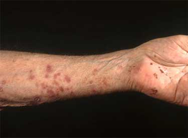 Герпесный рецидив на руке