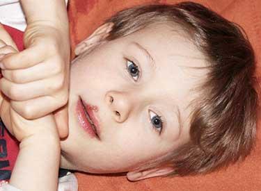 Герпетическая сыпь на верхней губе ребёнка