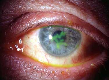Герпетическое поражение слизистой глаза