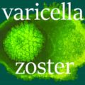 varicella-zoster